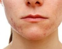 Какие косметические проблемы могут означать серьезную болезнь?